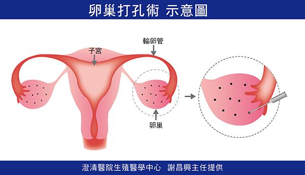 卵巢打孔術示意圖
